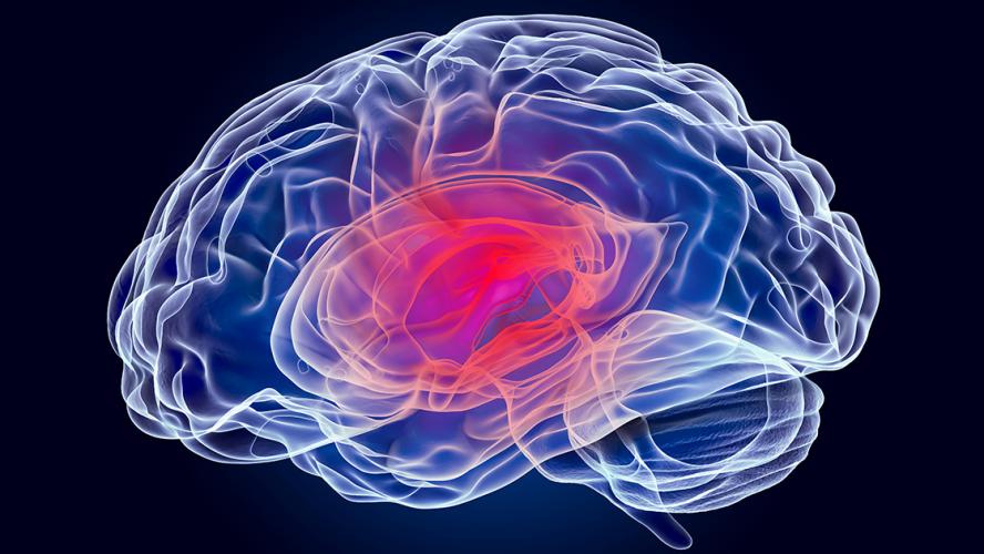 aivoterveys