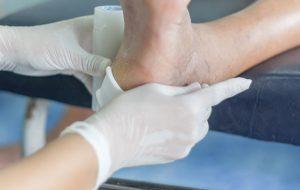 Diabeetikon jalat