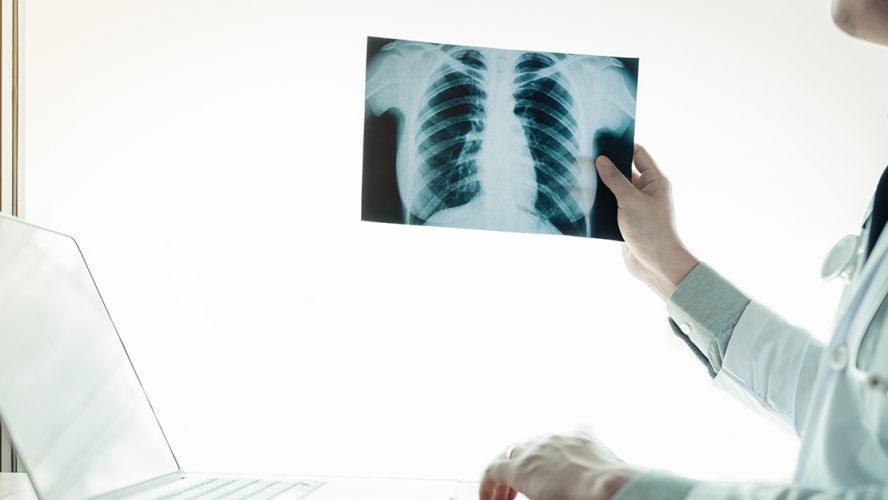 osteoporoosi