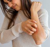 atooppinen-ekseema-ihottuma-kokemuksia-hoitosuositus