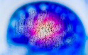 aikuisian-epilepsia