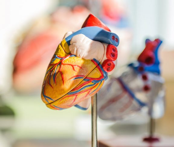 sydäninfarkti