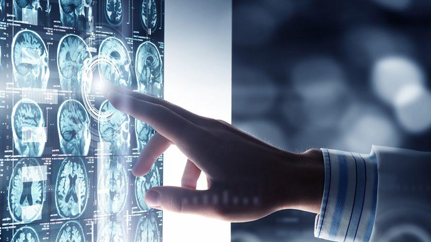 vinger raakt scherm met ct-scans