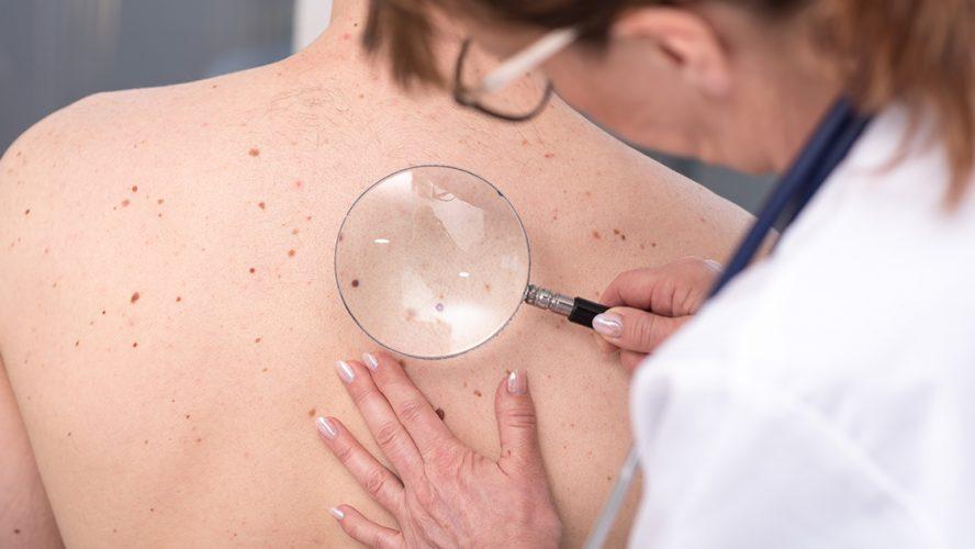 Cosmetisch dermatoloog onderzoekt huid van een patiënt