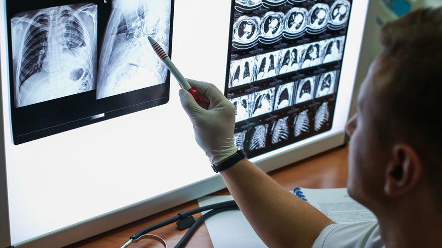 Expert kijkt naar radioscans van longen.