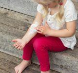 Kind met eczeem smeert helende zalf op arm