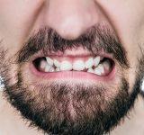 Mond met scheve tanden
