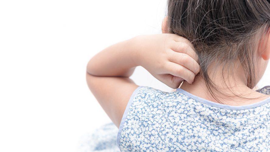 Kindje met eczeem krabt aan huid in haar nek