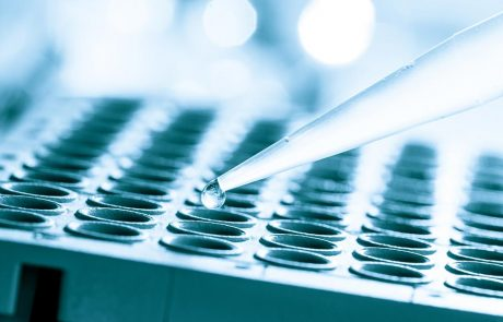 Laboratoriumonderzoek