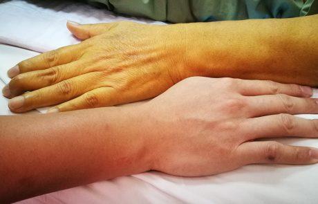 Twee armen: een van een patiënt met geelzucht en een van een persoon zonder geelzucht