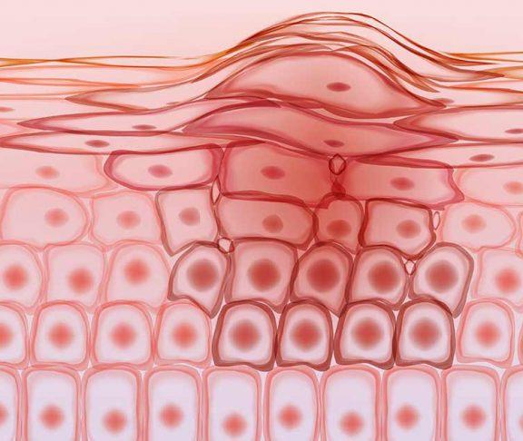 Grafische afbeelding huidkankercellen